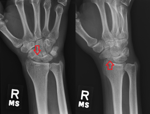 Scaphoid fractures classically present after patients FOOSH (Fall On OutStretched Hand) with swelling and tenderness of the anatomical snuff box. Plain radiographs can miss up to 14% of these fractures soon after injury. The risk of Avascular Necrosis (AVN) and variability in heeling time may be accounted for with its arterial blood flow  (retrograde from distal to proximal; the proximal pole being at greatest risk). Treat with Thumb Spica cast, repeat films within 2 weeks, have a chat with Ortho. Reference:  Marx JA, Hockberger RS, Walls RM, et al., eds. Rosen's Emergency Medicine: Concepts and Clinical Practice. Philadelphia, PA: Mosby/Elsevier; 2010.