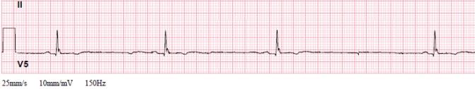 Bradycardia Recap